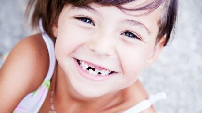 Come si cura la carie nei denti da latte