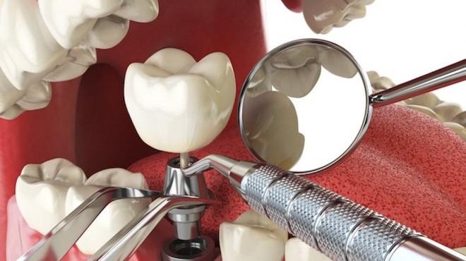 Impianto dentale: come comportarsi dopo l'intervento