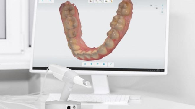 Lo scanner intraorale: precisione e utilità