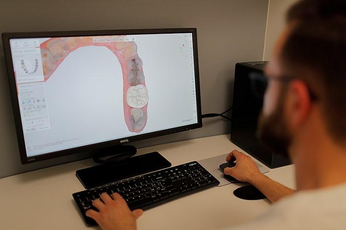 operatore cad cam realizza protsi dentale al computer