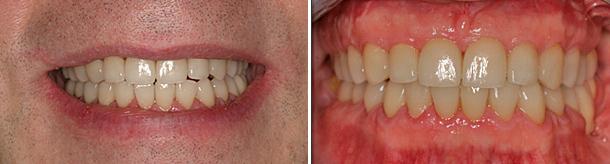 protesi-fissa-fisse-usure-dentali-caso-clinico-studio-odontoiatrico-associato-montevarchi-dentista-foto-dopo-intervento-casi-clinici