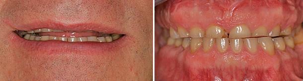 protesi-fissa-fisse-usure-dentali-caso-clinico-studio-odontoiatrico-associato-montevarchi-dentista-foto-prima-intervento-casi-clinici